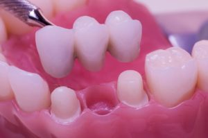 Same-Day Dental Bridges